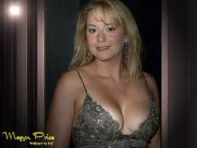 breast augmentation under 5 000 in southern california picture 7