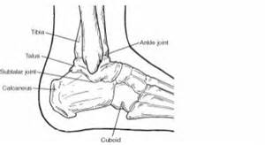 heel pain joint pain head ache picture 7