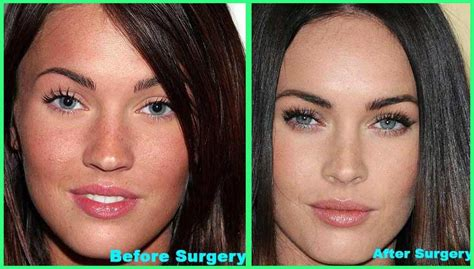 women with 2000cc implants picture 14