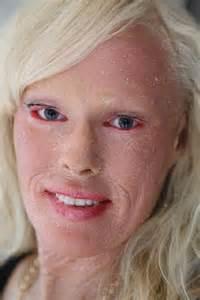 skin disorder pr picture 7