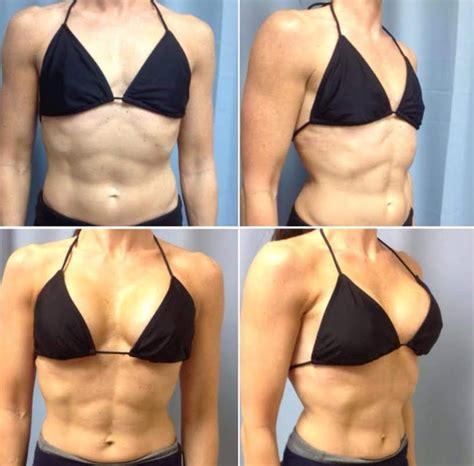 breast augmentation in the area picture 6