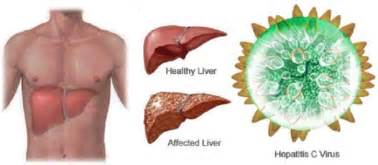 hep c and liver damage after treatment picture 7