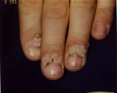 warts on cuticles picture 7