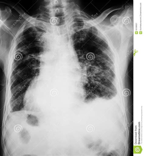 ill workcool that will workbacterial lung infection picture 24