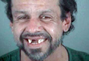 photos of people with teeth missing picture 14