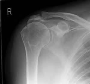 arthritis of the ac joint of the shoulder picture 11