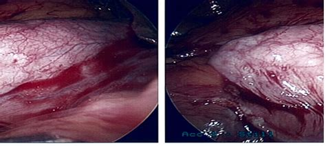 gullbladder infection picture 7
