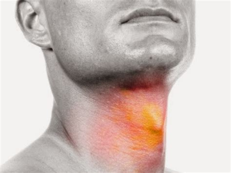 cyst throat thyroid picture 11