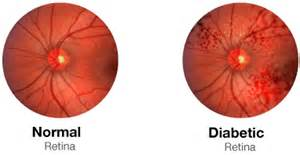 norman diabetic retinopathy picture 2