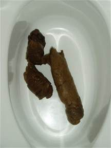 bowel movements very dark to black picture 5