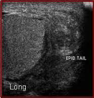 Epidytimis discharge picture 5