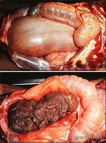 painful bowels picture 3