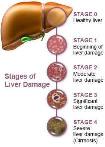 causes of liver failure picture 3