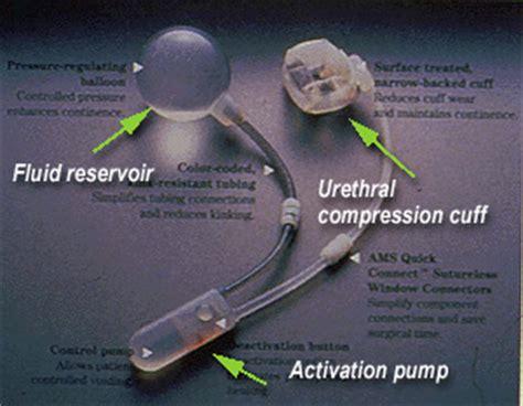 artificial bladder picture 9
