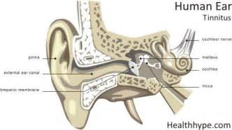 tinnitus picture 2