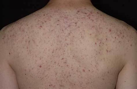 acne treatment for back picture 9