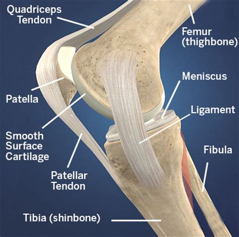 femoral joint pain picture 10