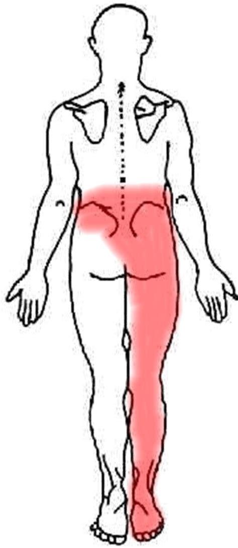 back ache leg pain picture 7