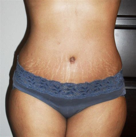 will tanning make stretch marks worse picture 15