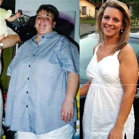 hyperthyroidism treatment weight gain picture 11