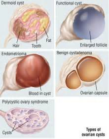 erbal supplement to decrease ovarian cysts picture 1