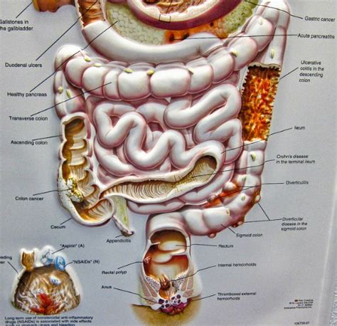digestion system problems picture 2
