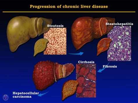 chronic liver disease picture 10
