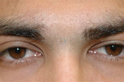 eyebrow hair removal picture 14
