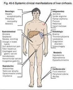 advanced portal cirrhosis liver picture 14