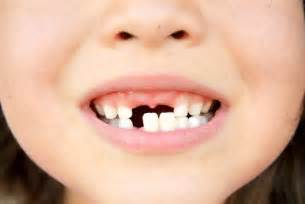 ages children loose baby teeth picture 10
