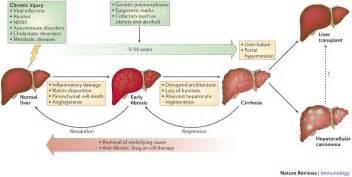symptoms of drug induced liver damage picture 10
