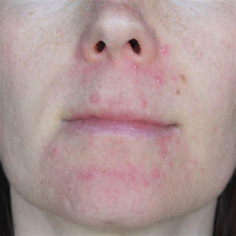 acne cks picture 7
