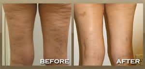 non surgical procedure to tighten skin on legs picture 6