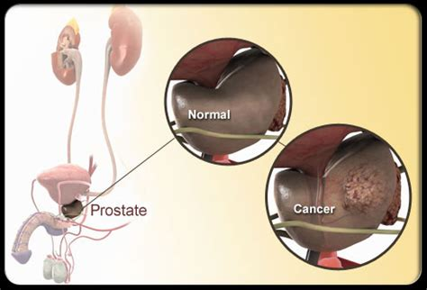 Prostate cures picture 3