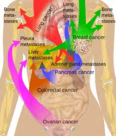 metastatic colon cancer in liver and lungs survival picture 9