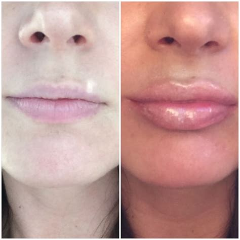 Lip injections picture 2