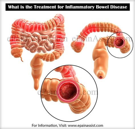 inflammatory bowel condition picture 11