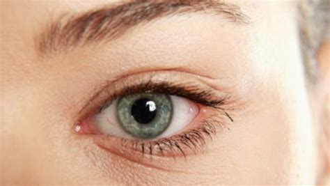 aging eyes picture 15