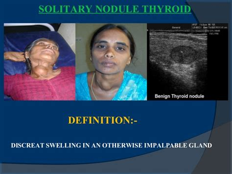 hypodense thyroid nodule definition picture 16
