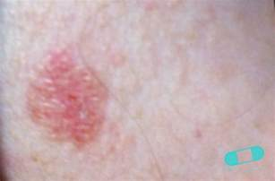 basal skin cancer symptoms picture 10
