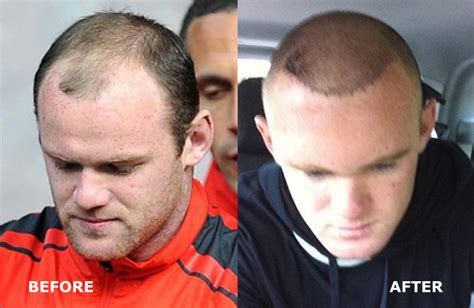 cost of hair transplants picture 6