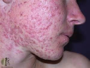 hormones for acne picture 11