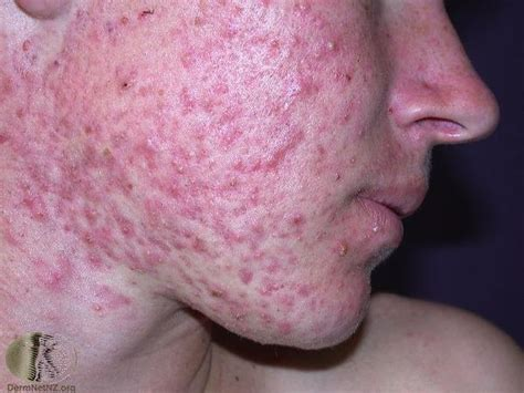 acne free for your face picture 6