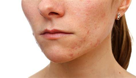 acne cks picture 11
