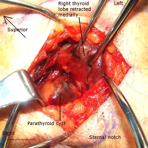 cyst on thyroid gland picture 19