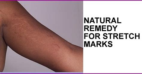 what color of stretch mark will fade away picture 2