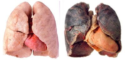 what damage second hand smoke can cause picture 7