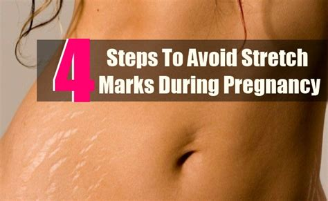 yeast infection in stretch marks picture 14