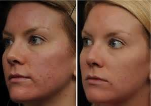 fraxel laser for acne scarring encino picture 12