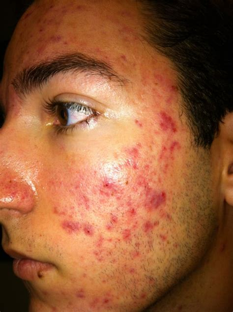 adolescent acne picture 1